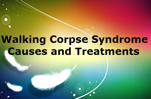 Walking Corpse Syndrome - Causes and Treatment