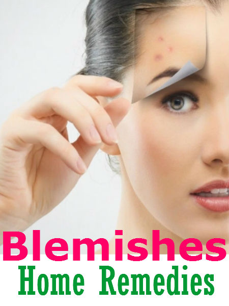 10 Best Home Remedies For Blemishes Cure