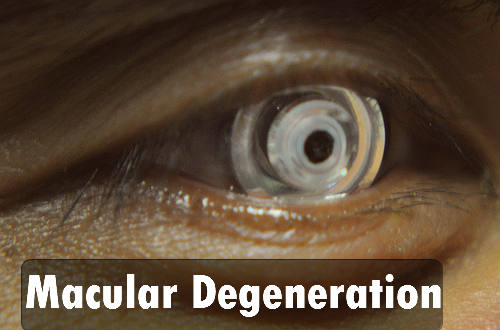 Macular Degeneration symptoms and treat