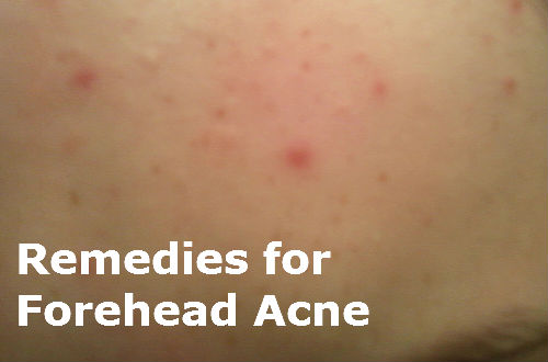 Forehead Acne Remedies
