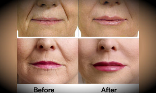 All About Lip injections : Cost & before and after pics of ...