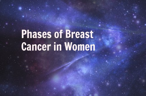 phases of breast cancer