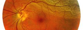 Retinal Detachment Surgery Causes, Symptoms & Prevention