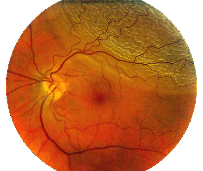 retinal_detachment_surgery_risks