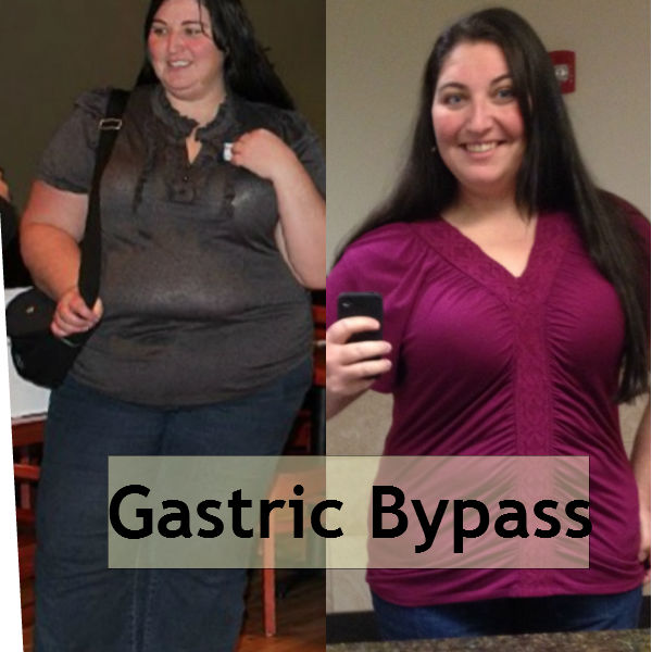 Gastric Bypass Surgery – 26 Quick Pros and the Cons