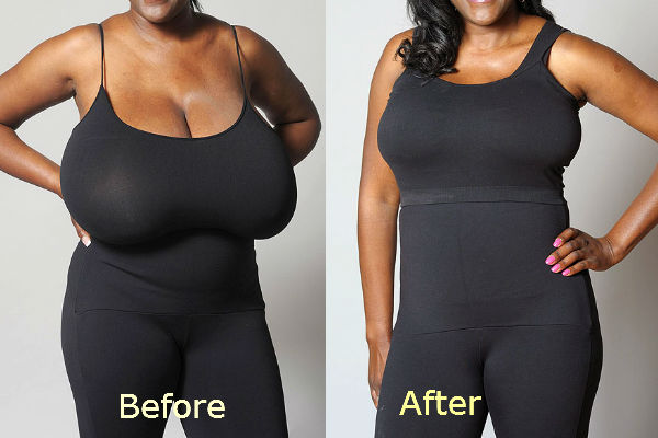 pros_and_cons_breast_reduction