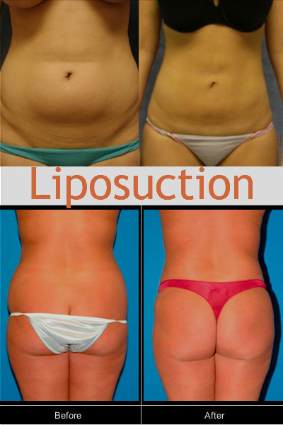 liposuction_disadvantages
