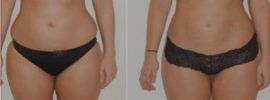 Major Vaser Liposuction pros and cons information