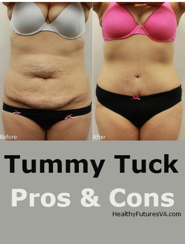 Tummy tuck pros cons