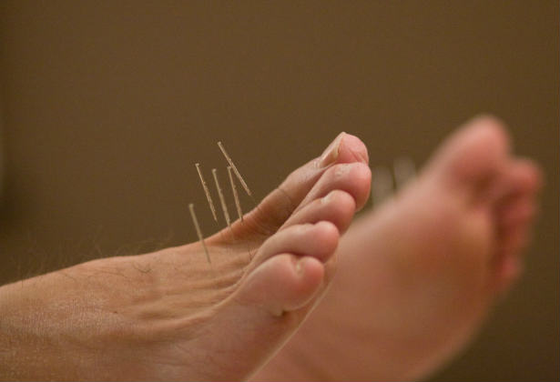 Acupuncture_remedy