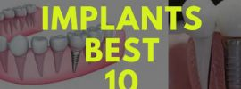 Top 10 Powerful Dental Implants Benefits!