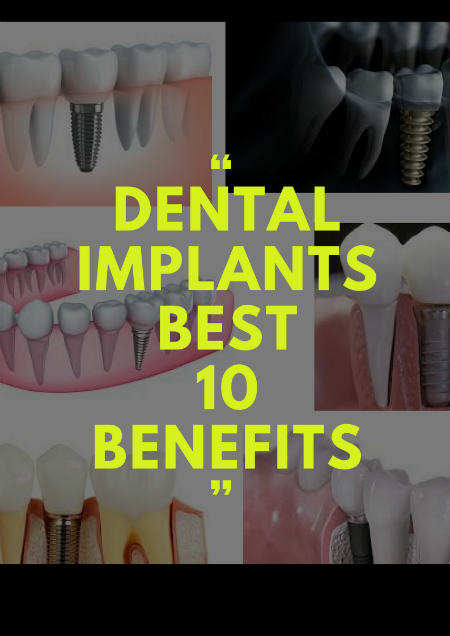 dental_implants_benefits